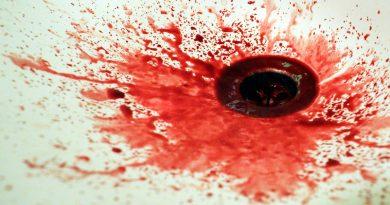 Артеріальна кровотеча
