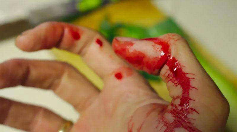 Кровотеча